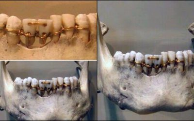 Incredible dental work found on a 4,000-year-old mummy of Ancient Egypt